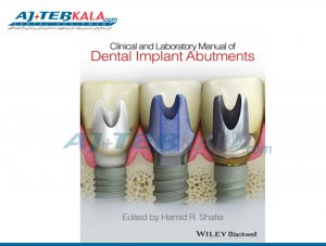 Dental Implants Abutments