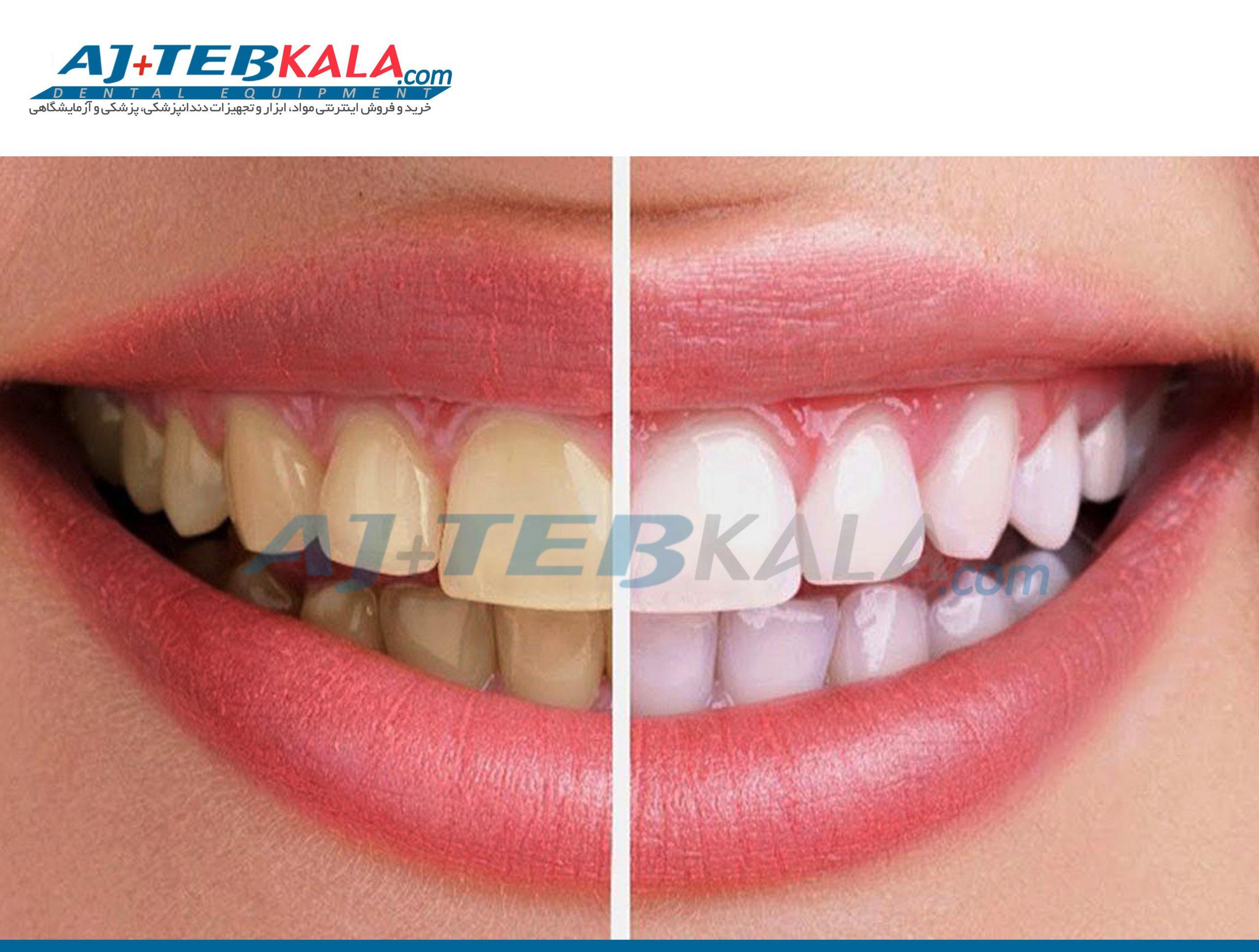 سه عامل تغییر رنگ در دندان ها