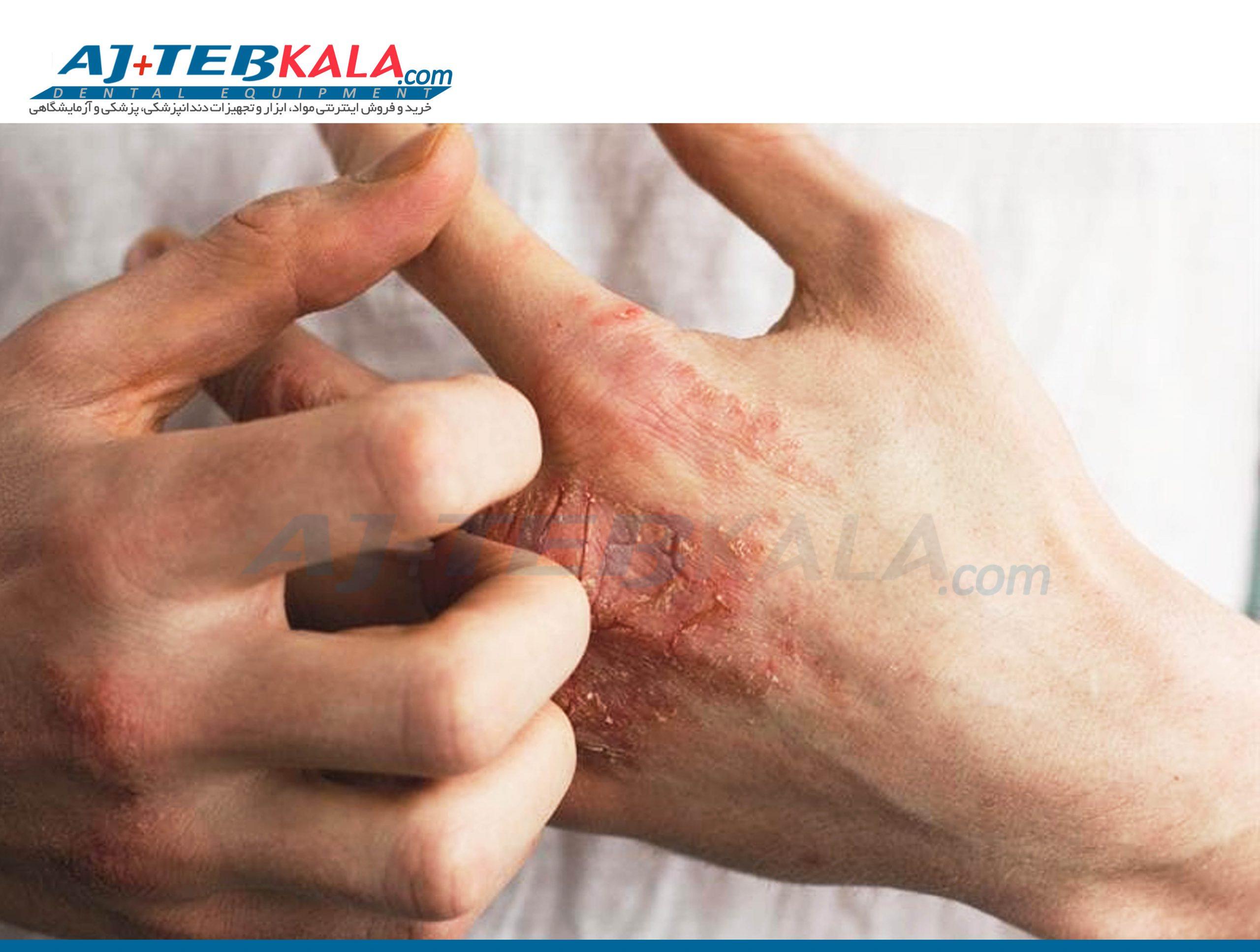 اگزما در اثر شستشوی دست