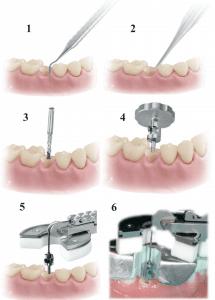 اکسترکتور BENEX برای کشیدن دندان های شکسته